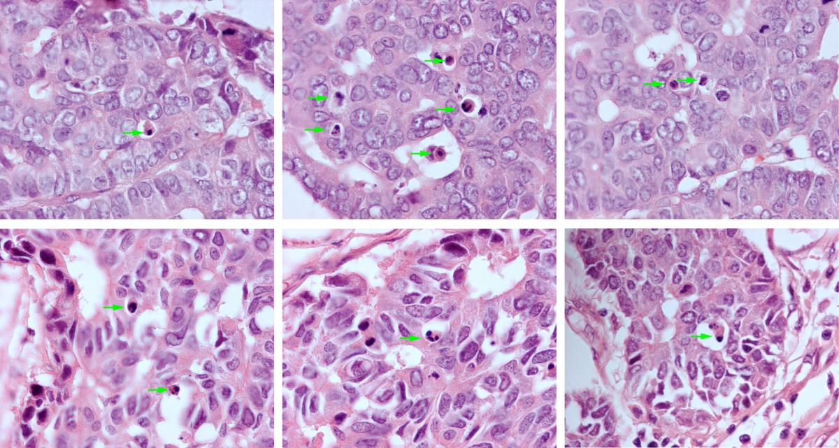 Examples of apoptotic nuclei in H&E stained breast cancer histology slides