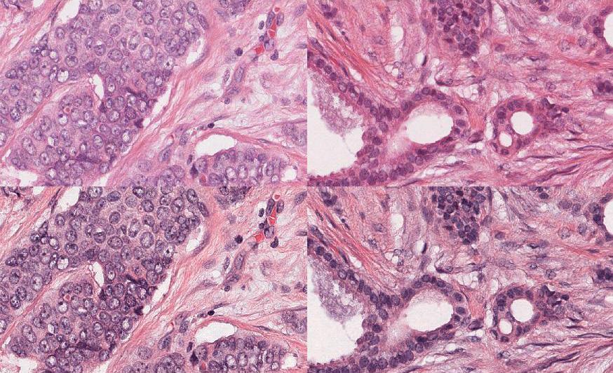 Software | Tumor Proliferation Assessment Challenge 2016